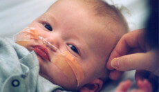 What To Do If Your Baby Has Erb's Palsy?