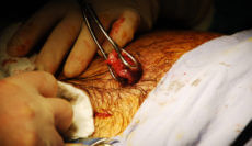 gallbladder surgery malpractice
